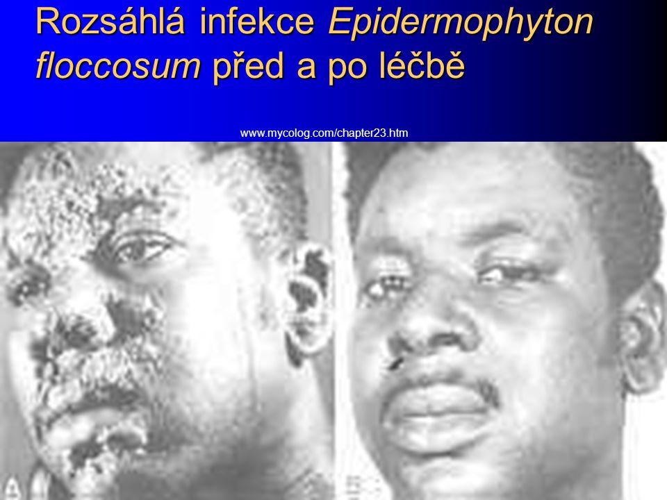 Rozsáhlá infekce Epidermophyton floccosum před a po léčbě www.mycolog.com/chapter23.htm