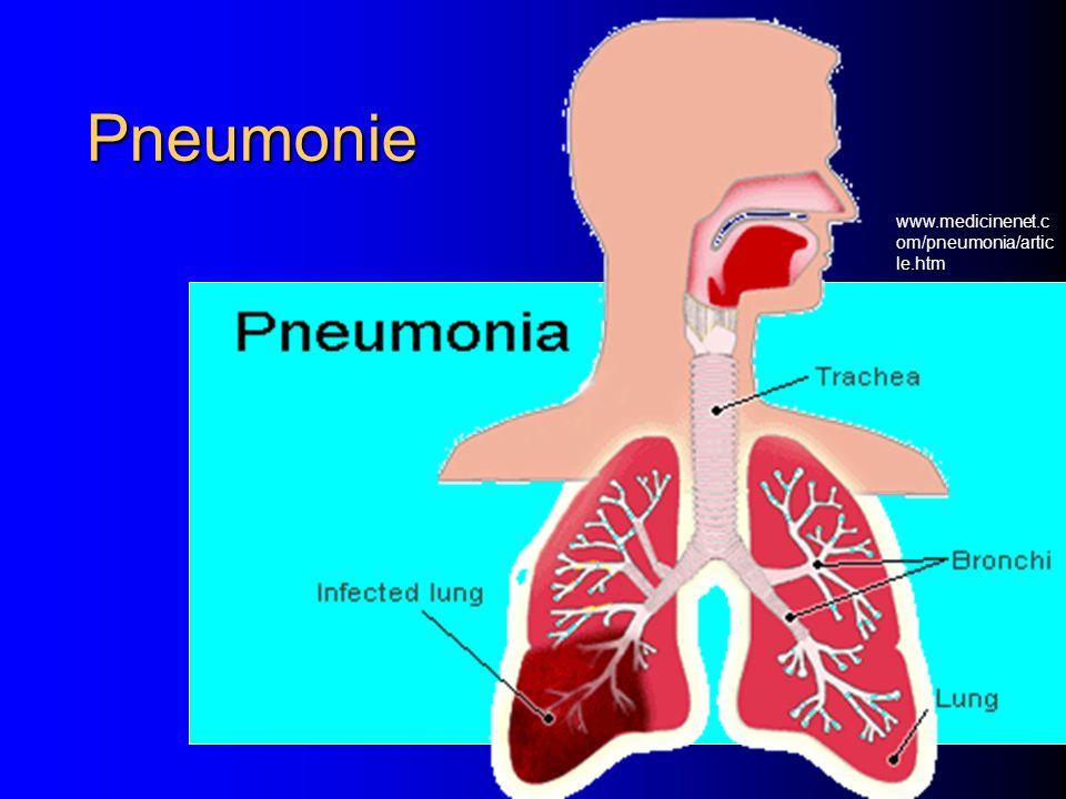 Pneumonie www.medicinenet.c om/pneumonia/artic le.htm
