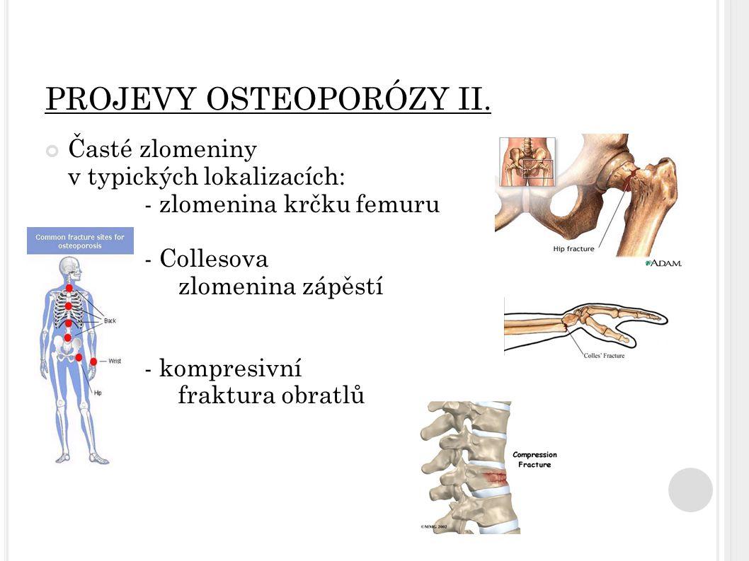 PROJEVY OSTEOPORÓZY II. Časté zlomeniny v typických lokalizacích: - zlomenina krčku femuru - Collesova zlomenina zápěstí - kompresivní fraktura obratl