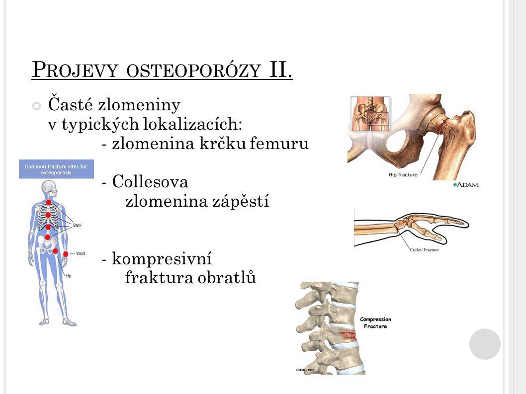 P ROJEVY OSTEOPORÓZY II. Časté zlomeniny v typických lokalizacích: - zlomenina krčku femuru - Collesova zlomenina zápěstí - kompresivní fraktura obrat