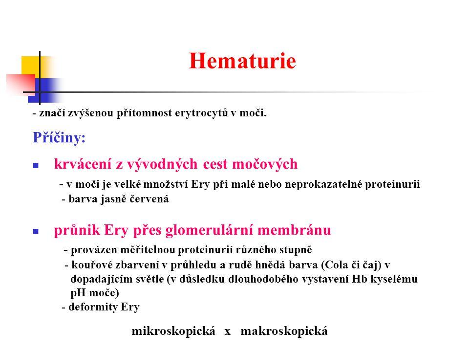 Hematurie - značí zvýšenou přítomnost erytrocytů v moči.