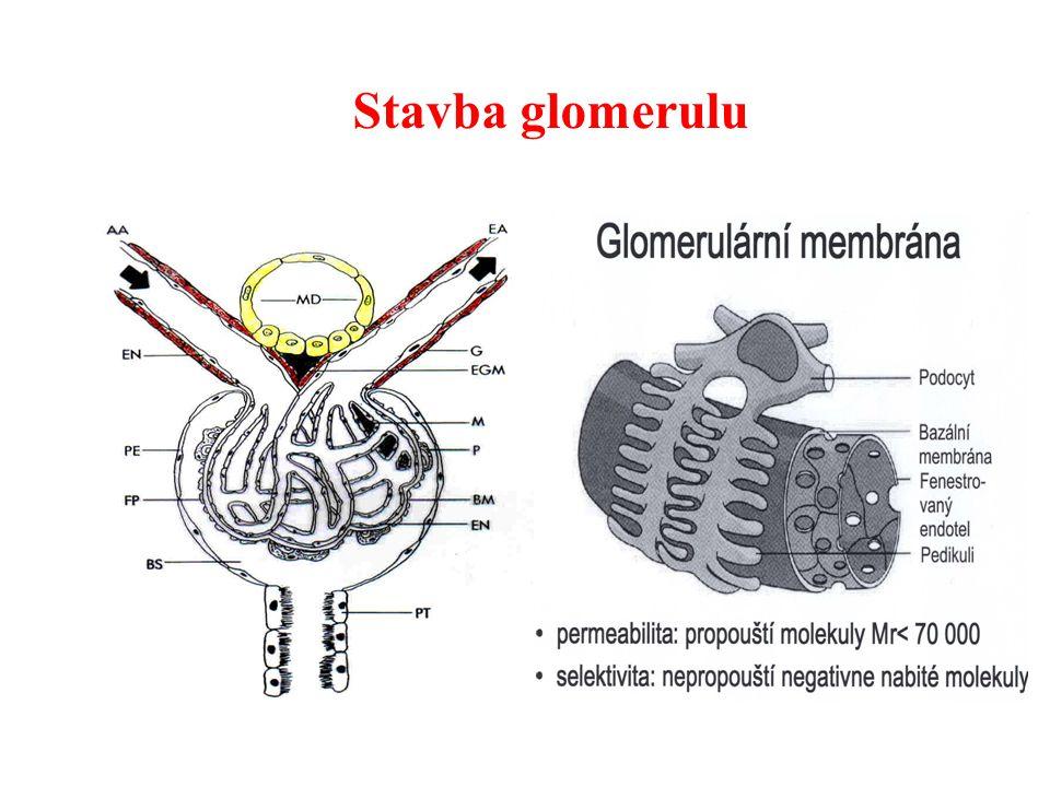 Vrozené tubulární metabolické defekty Fanconiho syndrom – důsledkem defektu Na + /K + -ATPasy - postiženy transportní funkce proximálního tubulu: * renální glykosurie (při normální glykémii) * tubulární proteinurie (především  2 -mikroglobulin) * aminoacidurie * hyperfosfaturie a hnypofasfatemie * hyperurikosurie * proximální renální tubulární acidóza (  resorpce hydrogenkarbonátů) * frakční exkrece Na + > 1% - sekundární porucha kostí (rachitis, osteomalacie, poruchy růstu kostí) - tendence k hypovolémii (projevy ortostatické hypotenze)  sekundární hyperaldosteronismus  hypokalémie (sval.