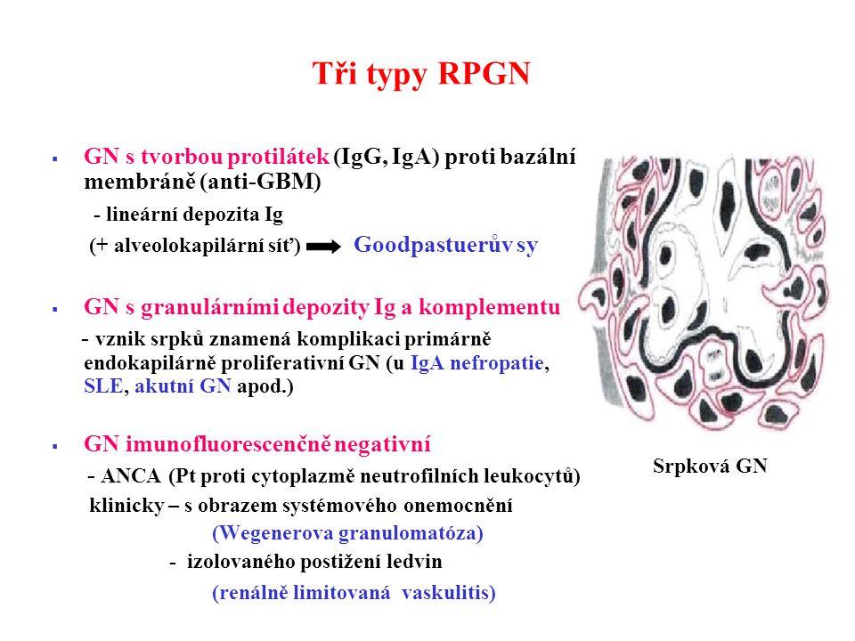 Tři typy RPGN  GN s tvorbou protilátek (IgG, IgA) proti bazální membráně (anti-GBM) - lineární depozita Ig (+ alveolokapilární síť) Goodpastuerův sy  GN s granulárními depozity Ig a komplementu - vznik srpků znamená komplikaci primárně endokapilárně proliferativní GN (u IgA nefropatie, SLE, akutní GN apod.)  GN imunofluorescenčně negativní - ANCA (Pt proti cytoplazmě neutrofilních leukocytů) klinicky – s obrazem systémového onemocnění (Wegenerova granulomatóza) - izolovaného postižení ledvin (renálně limitovaná vaskulitis) Srpková GN