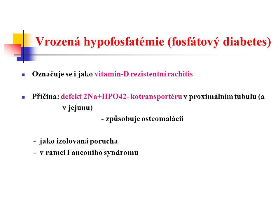Vrozená hypofosfatémie (fosfátový diabetes) Označuje se i jako vitamin-D rezistentní rachitis Příčina: defekt 2Na+HPO42- kotransportéru v proximálním tubulu (a v jejunu) - způsobuje osteomalácii - jako izolovaná porucha - v rámci Fanconiho syndromu