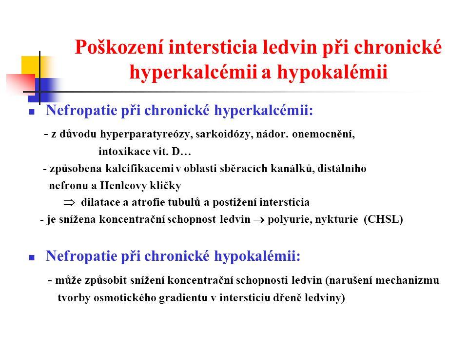 Poškození intersticia ledvin při chronické hyperkalcémii a hypokalémii Nefropatie při chronické hyperkalcémii: - z důvodu hyperparatyreózy, sarkoidózy, nádor.