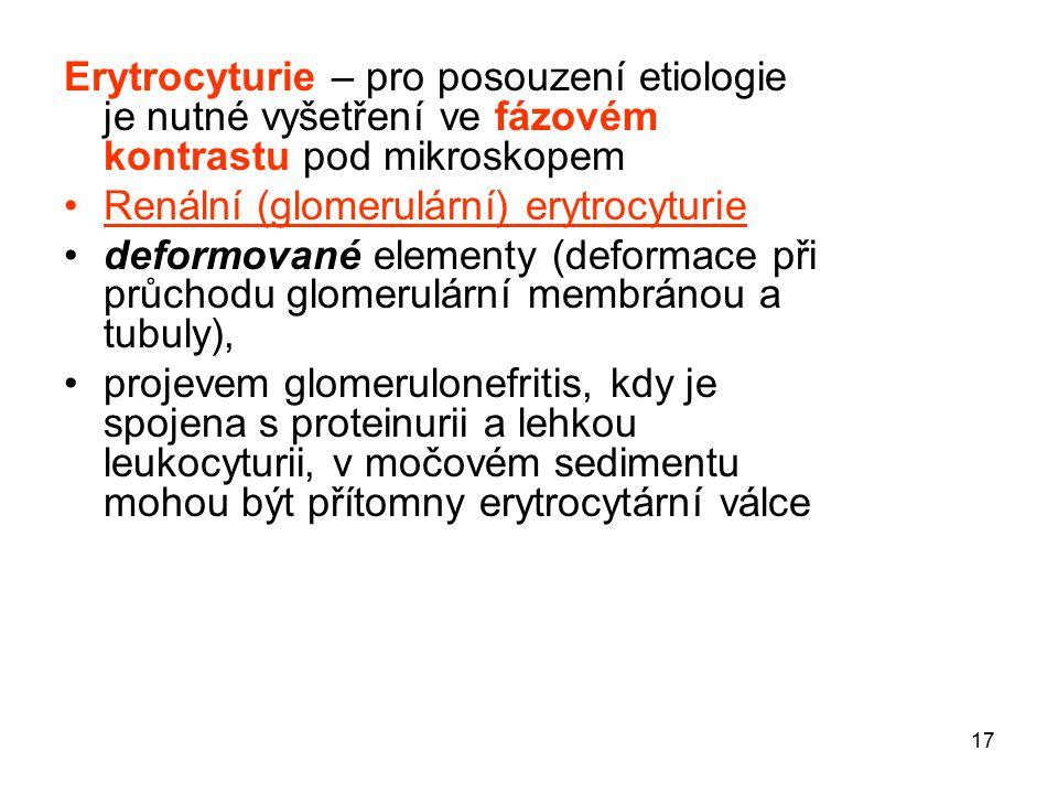 17 Erytrocyturie – pro posouzení etiologie je nutné vyšetření ve fázovém kontrastu pod mikroskopem Renální (glomerulární) erytrocyturie deformované el