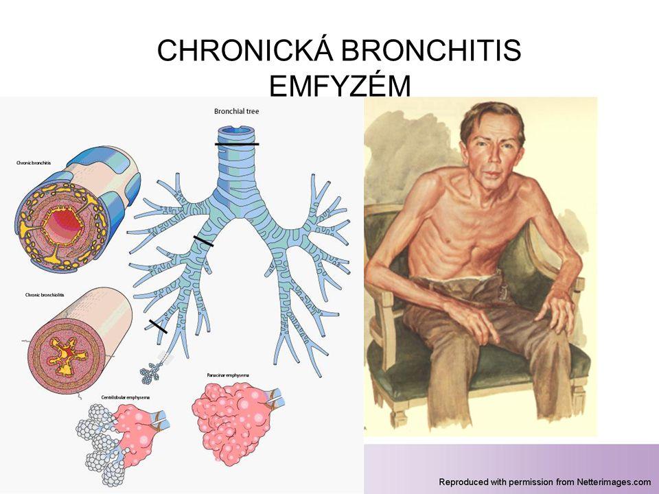 43 CHRONICKÁ BRONCHITIS EMFYZÉM