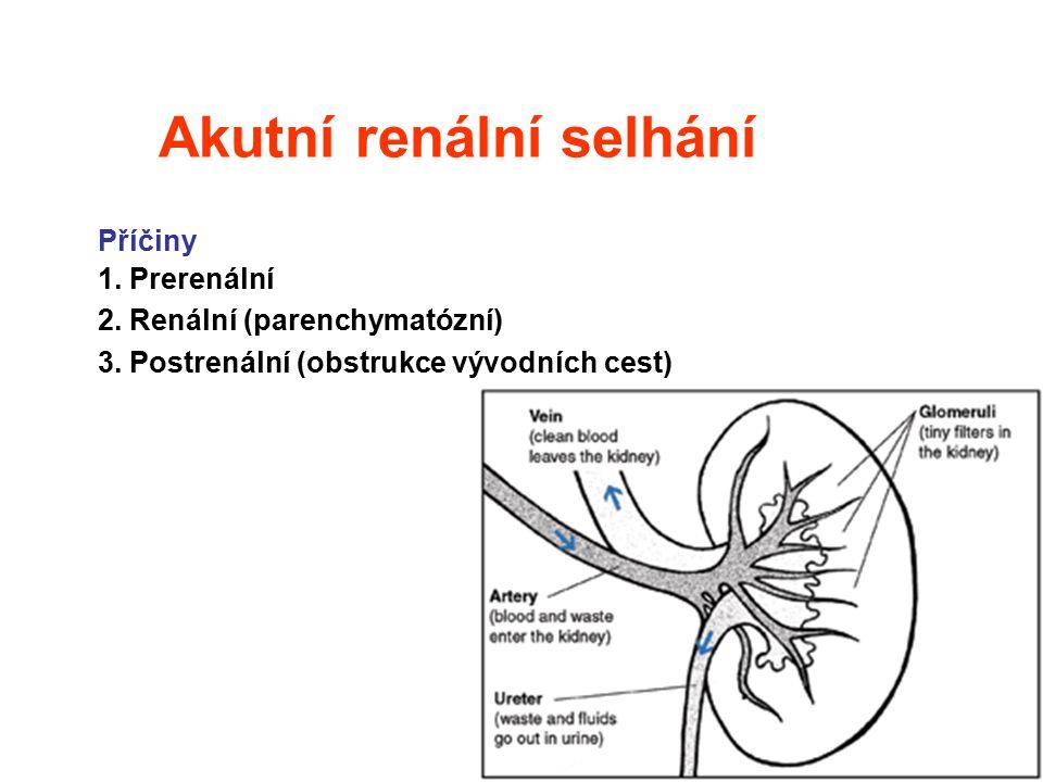 7 Akutní renální selhání Příčiny 1. Prerenální 2. Renální (parenchymatózní) 3. Postrenální (obstrukce vývodních cest)