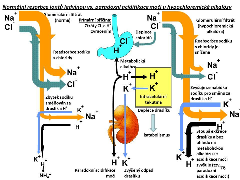 76 H+H+ Cl - K+K+ K+K+ H+H+ Na + H+H+ Cl - H+H+ K+K+ K+K+ H+H+ K+K+ H+H+ Paradoxní acidifikace moči Deplece draslíku Deplece chloridů Glomerulární fil