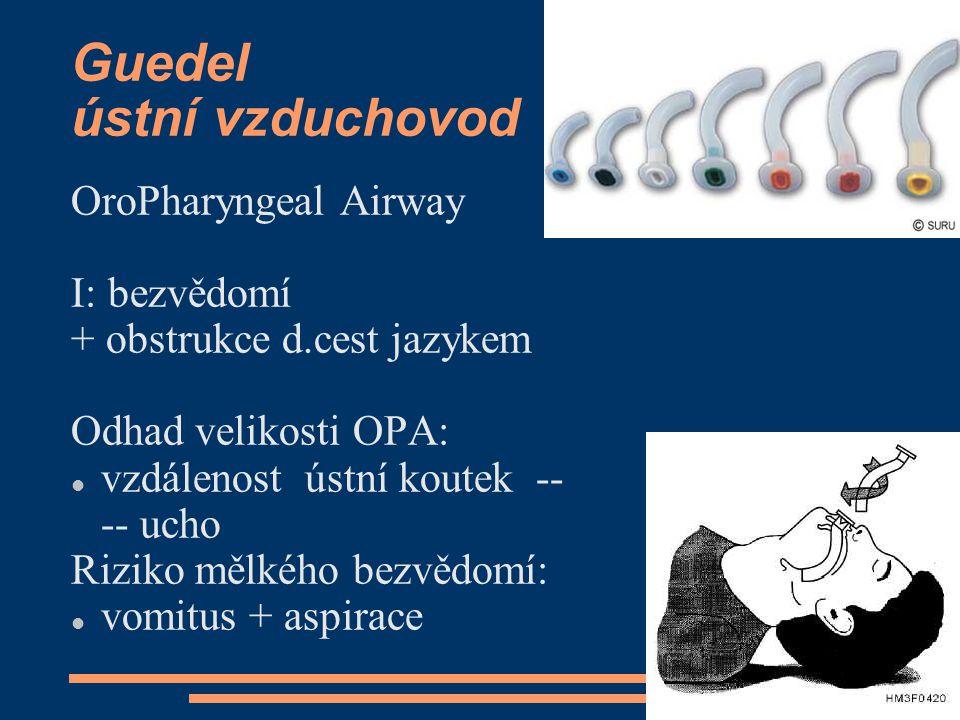 Guedel ústní vzduchovod OroPharyngeal Airway I: bezvědomí + obstrukce d.cest jazykem Odhad velikosti OPA: vzdálenost ústní koutek -- -- ucho Riziko mě