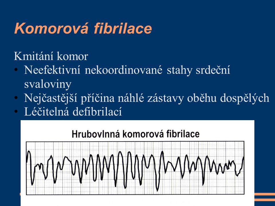 Komorová fibrilace Kmitání komor Neefektivní nekoordinované stahy srdeční svaloviny Nejčastější příčina náhlé zástavy oběhu dospělých Léčitelná defibr