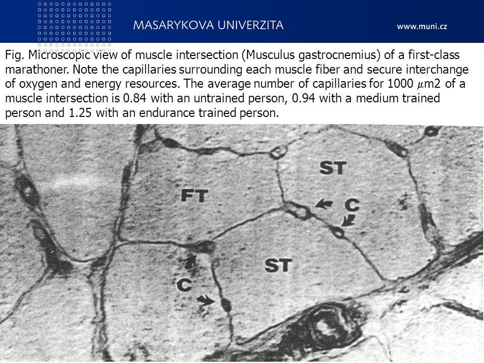 7. Pohybové schopnosti - vytrvalostní a obratnostní CZ.1.07/2.2.00/15.0199 Cizí jazyky v kinantropologii14 Fig. Microscopic view of muscle intersectio