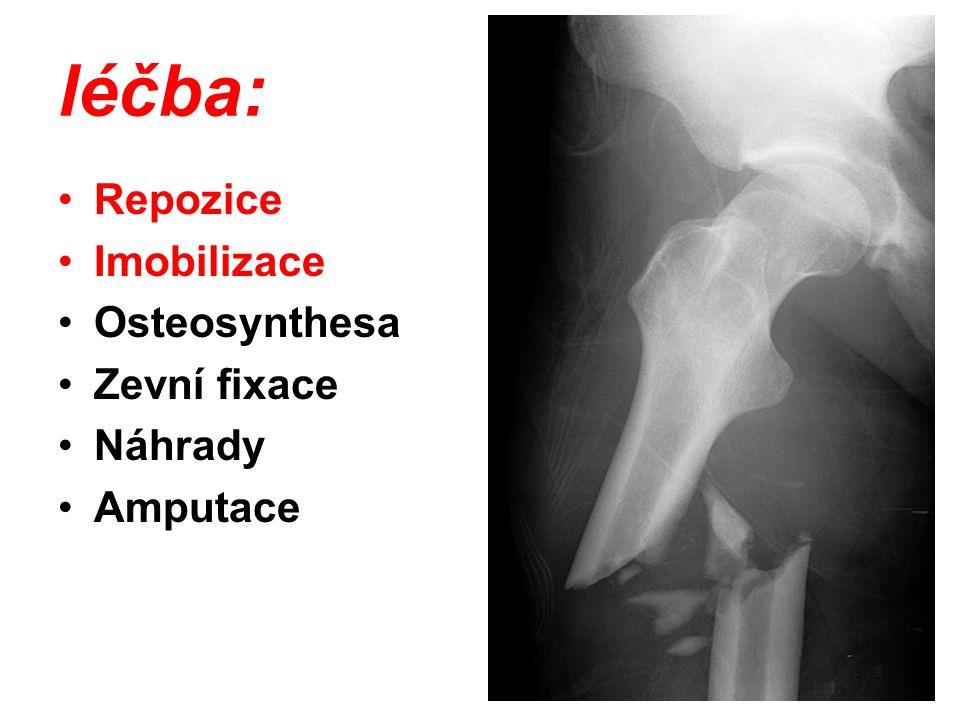 léčba: Repozice Imobilizace Osteosynthesa Zevní fixace Náhrady Amputace