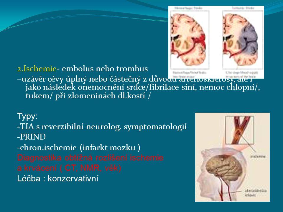 2.Ischemie- embolus nebo trombus –uzávěr cévy úplný nebo částečný z důvodů arteriosklerosy, ale i jako následek onemocnění srdce/fibrilace síní, nemoc