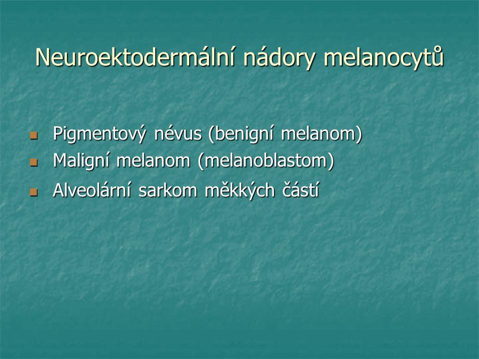 Neuroektodermální nádory melanocytů Pigmentový névus (benigní melanom) Pigmentový névus (benigní melanom) Maligní melanom (melanoblastom) Maligní mela