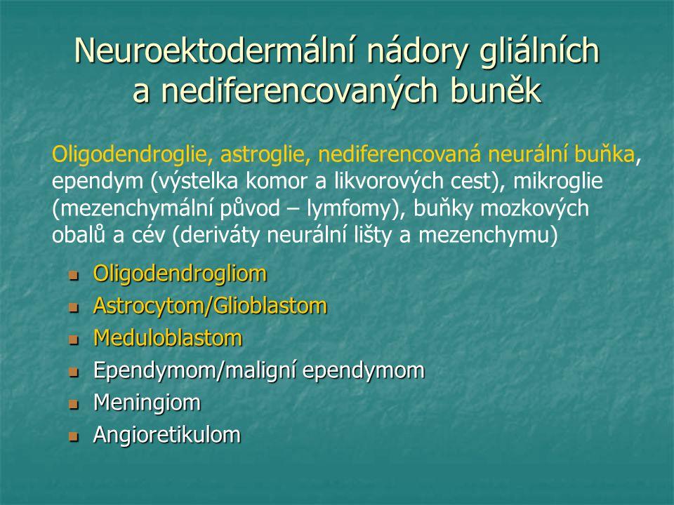 Neuroektodermální nádory gliálních a nediferencovaných buněk Oligodendrogliom Oligodendrogliom Astrocytom/Glioblastom Astrocytom/Glioblastom Medulobla