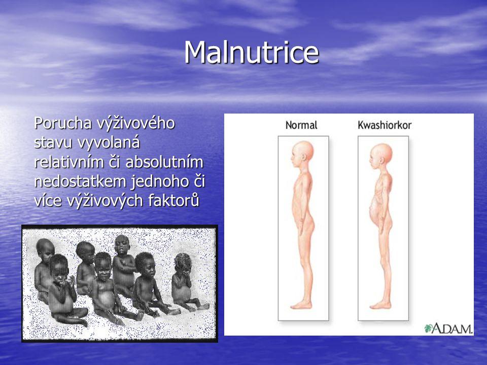 Malnutrice Porucha výživového stavu vyvolaná relativním či absolutním nedostatkem jednoho či více výživových faktorů