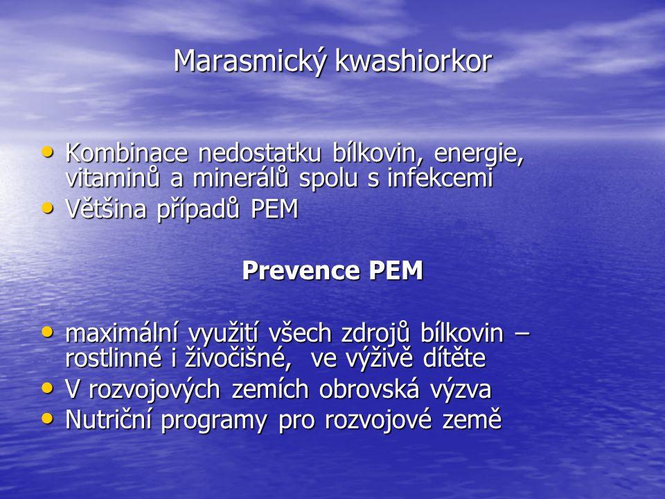 Marasmický kwashiorkor Kombinace nedostatku bílkovin, energie, vitaminů a minerálů spolu s infekcemi Kombinace nedostatku bílkovin, energie, vitaminů