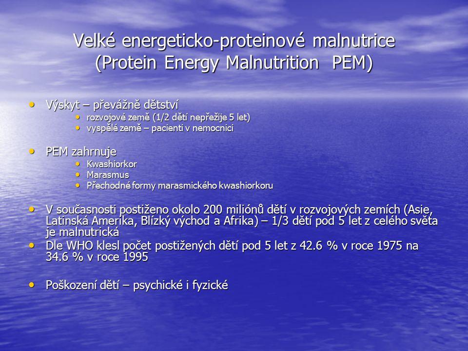 Velké energeticko-proteinové malnutrice (Protein Energy Malnutrition PEM) Výskyt – převážně dětství Výskyt – převážně dětství rozvojové země (1/2 dětí