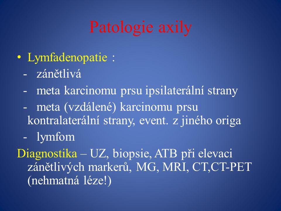 Patologie axily Lymfadenopatie : - zánětlivá - meta karcinomu prsu ipsilaterální strany - meta (vzdálené) karcinomu prsu kontralaterální strany, event.