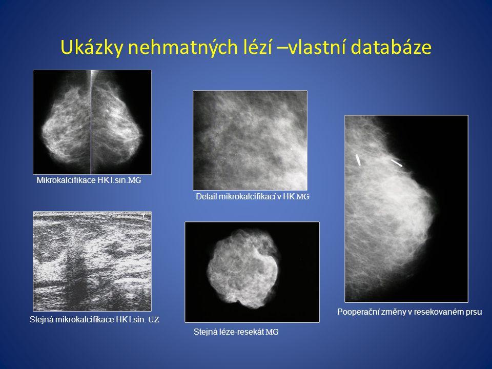 Ukázky nehmatných lézí –vlastní databáze Pooperační změny v resekovaném prsu Stejná mikrokalcifikace HK l.sin.