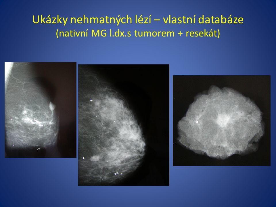 Ukázky nehmatných lézí – vlastní databáze (nativní MG l.dx.s tumorem + resekát)