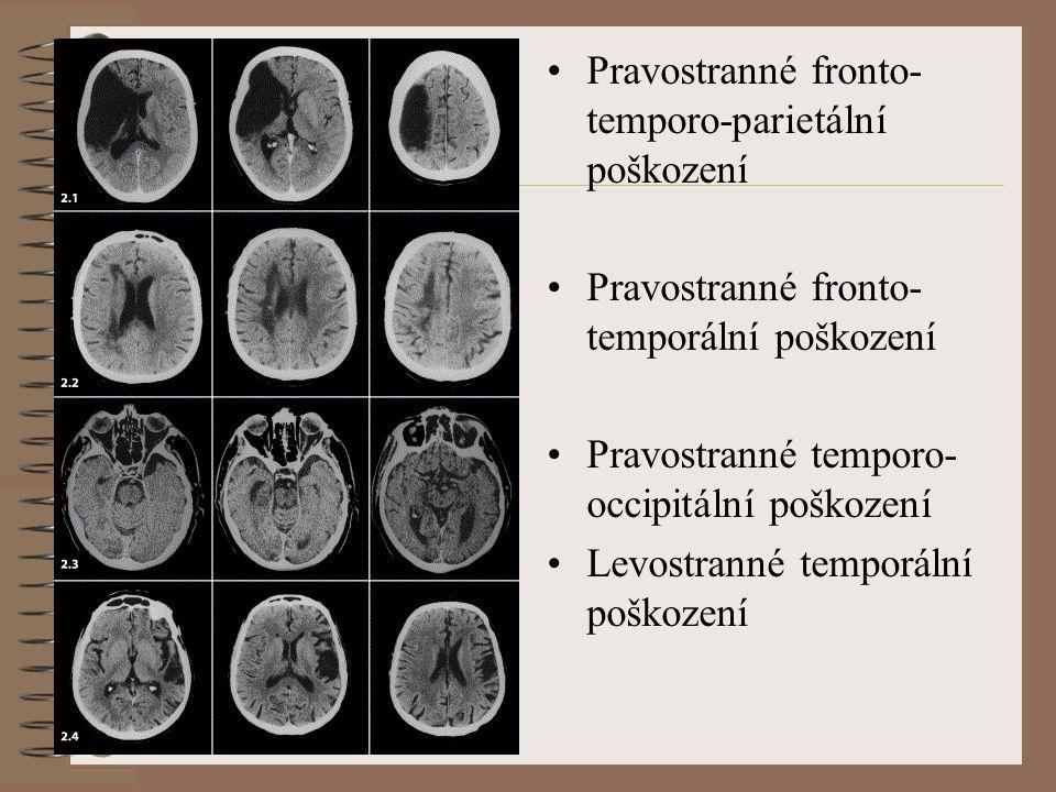 Pravostranné fronto- temporo-parietální poškození Pravostranné fronto- temporální poškození Pravostranné temporo- occipitální poškození Levostranné temporální poškození