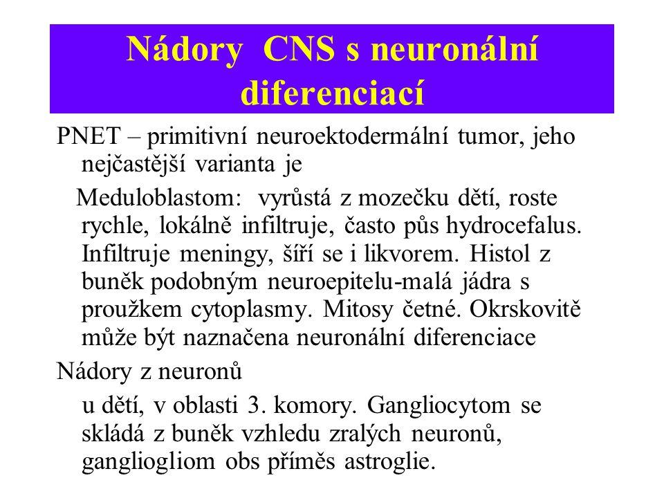 Nádory CNS s neuronální diferenciací PNET – primitivní neuroektodermální tumor, jeho nejčastější varianta je Meduloblastom: vyrůstá z mozečku dětí, ro