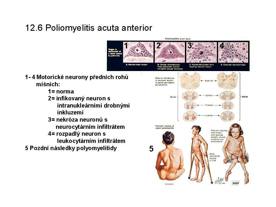 Amyotrofická laterální skleróza ALS je onemocnění středního věku, průběh je vleklý a progresivní.