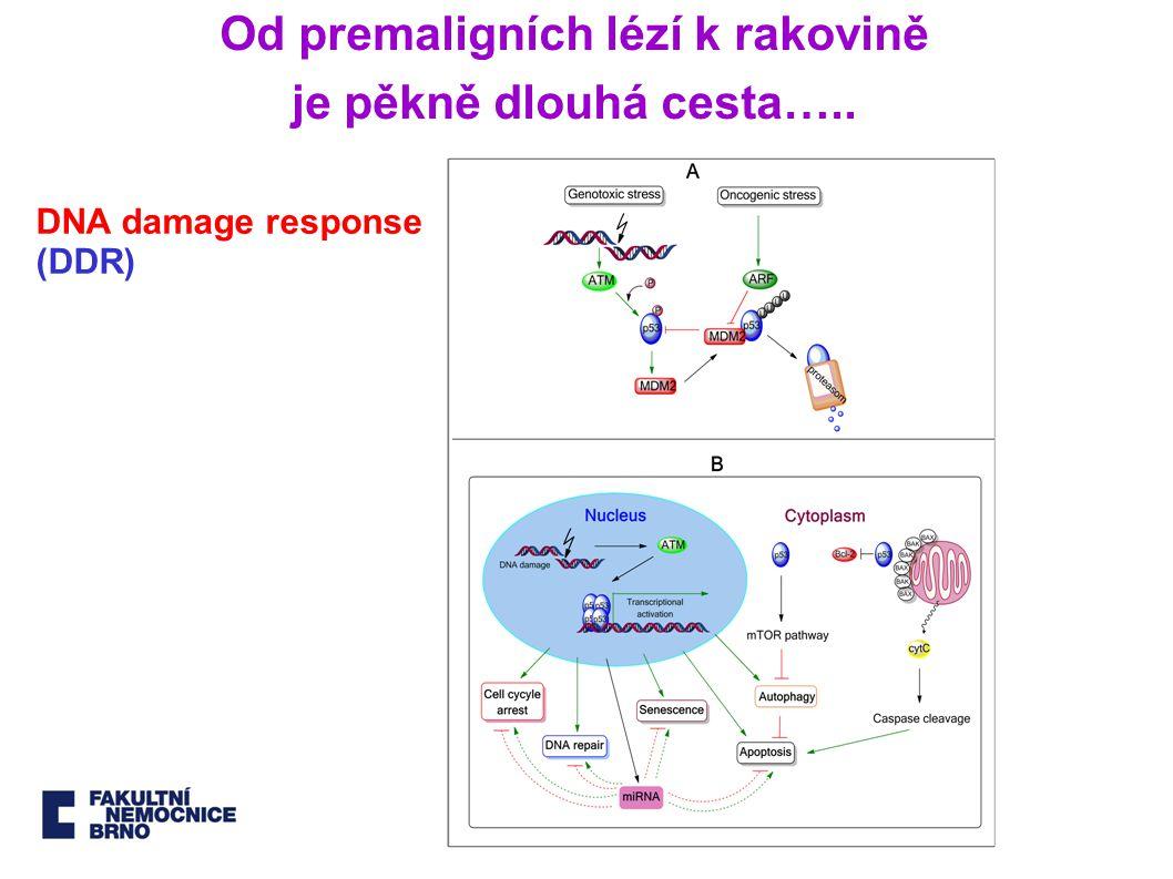 Využití V: Micro RNA v onkogenezi Lagos-Quintana M et al.