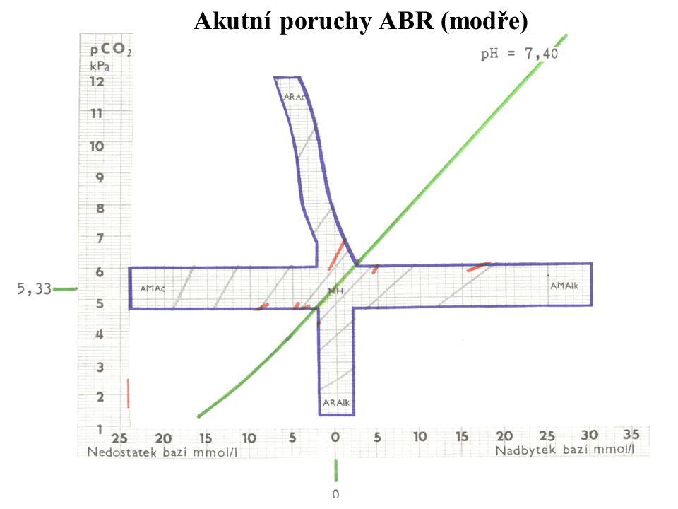 60 Akutní poruchy ABR (modře)