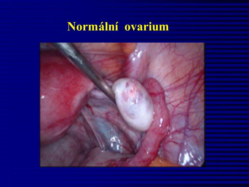Poruchy intenzity a délky menstruačního cyklu Hypomenorrhoea (méně než 2 vložky/den) příčiny: organické (myom, zánět, tumor) x funkční příčiny (porucha epitelizace) Hypermenorrhoea (více než 5 vložek/den, krvácení delší než 8 dnů) příčiny organické (Aschermanův sy) x funkční příčiny ( endokrinopatie) Menorrhagia (více než 5 vložek/den, krvácení do 7 dnů)