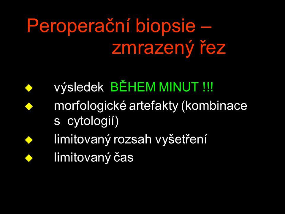 Peroperační biopsie – zmrazený řez u výsledek BĚHEM MINUT !!! u morfologické artefakty (kombinace s cytologií) u limitovaný rozsah vyšetření u limitov