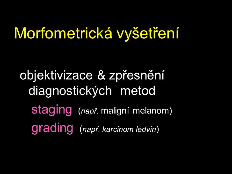 Morfometrická vyšetření objektivizace & zpřesnění diagnostických metod staging ( např. maligní melanom) grading ( např. karcinom ledvin )