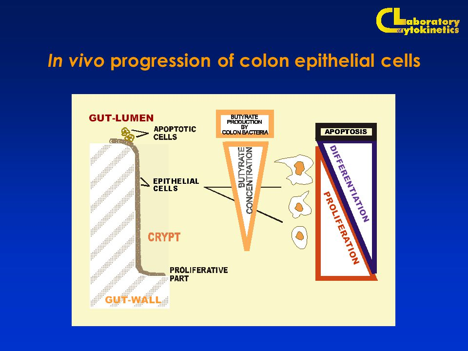 In vivo progression of colon epithelial cells
