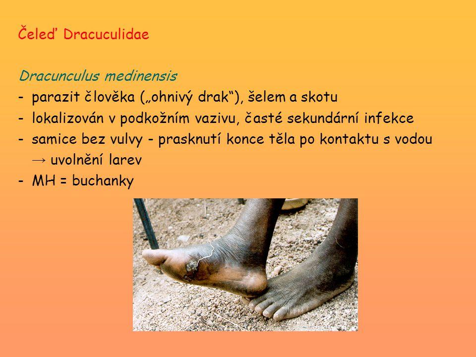 """Čeleď Dracuculidae Dracunculus medinensis -parazit člověka (""""ohnivý drak ), šelem a skotu -lokalizován v podkožním vazivu, časté sekundární infekce -samice bez vulvy - prasknutí konce těla po kontaktu s vodou → uvolnění larev -MH = buchanky"""