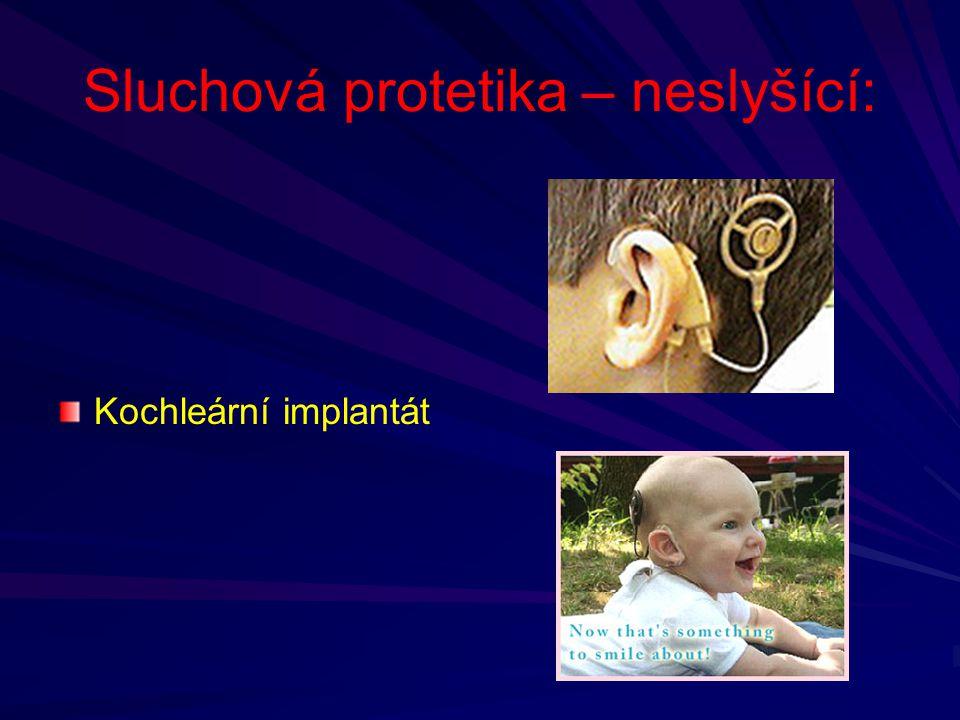 Sluchová protetika – neslyšící: Kochleární implantát
