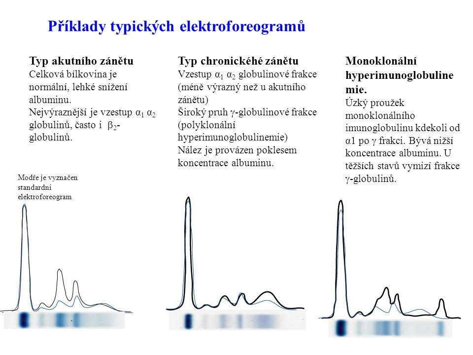 10 Albumin syntéza: játra 10-12g/den hlavní protein plazmy 35-53 g /l (sérum) mol.hmotnost ≈ 69 000 585 AK degradace patrně nejvíce v endotelu kapilár, kostní dřeni a ´hepatocytech biologický poločas 20 dní