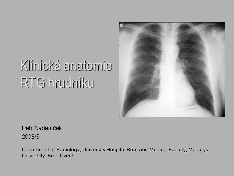Klinická anatomie RTG hrudníku Petr Nádeníček 2008/9 Department of Radiology, University Hospital Brno and Medical Faculty, Masaryk University, Brno,C