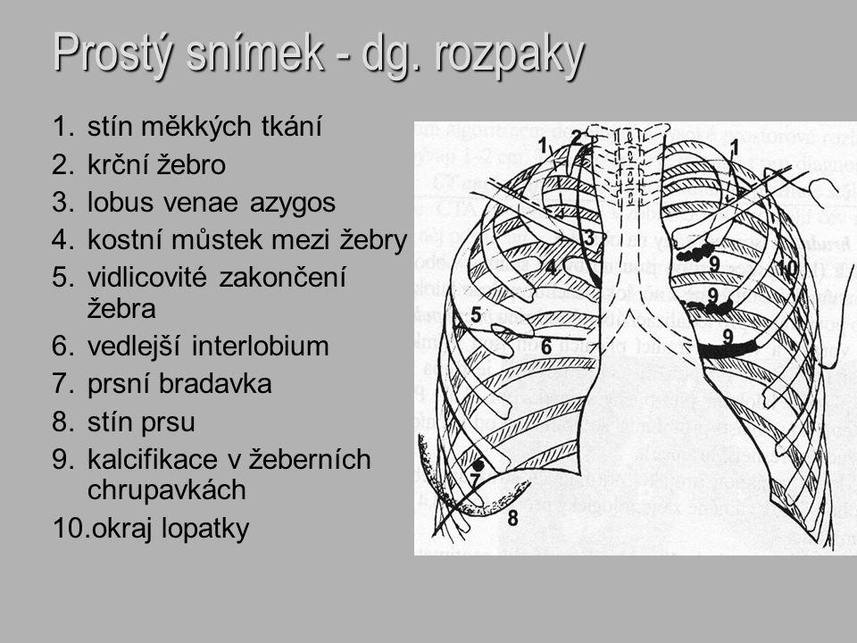 Prostý snímek - dg. rozpaky 1.stín měkkých tkání 2.krční žebro 3.lobus venae azygos 4.kostní můstek mezi žebry 5.vidlicovité zakončení žebra 6.vedlejš