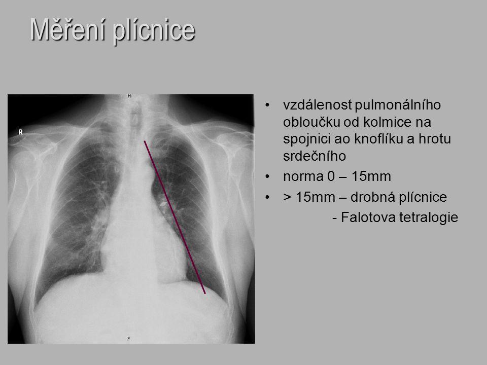 Měření plícnice vzdálenost pulmonálního obloučku od kolmice na spojnici ao knoflíku a hrotu srdečního norma 0 – 15mm > 15mm – drobná plícnice - Faloto