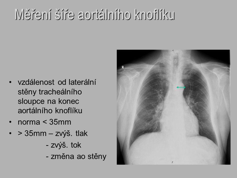 Měření šíře aortálního knoflíku vzdálenost od laterální stěny tracheálního sloupce na konec aortálního knoflíku norma < 35mm > 35mm – zvýš. tlak - zvý