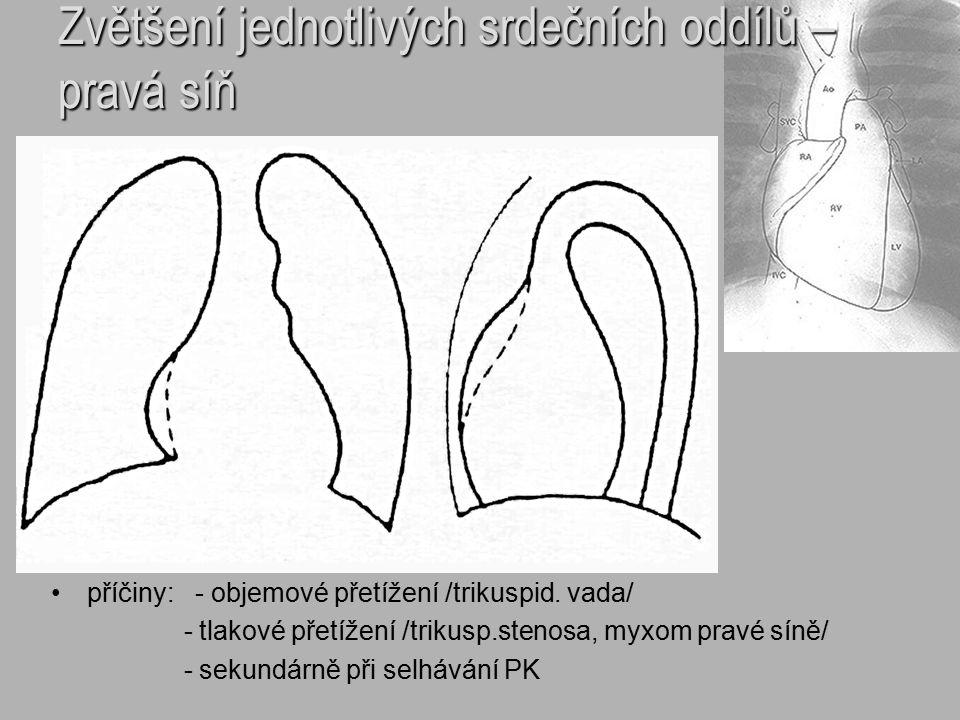 Zvětšení jednotlivých srdečních oddílů – pravá síň příčiny: - objemové přetížení /trikuspid. vada/ - tlakové přetížení /trikusp.stenosa, myxom pravé s