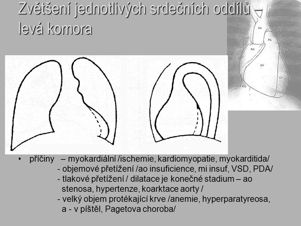 Zvětšení jednotlivých srdečních oddílů – levá komora příčiny – myokardiální /ischemie, kardiomyopatie, myokarditida/ - objemové přetížení /ao insufici