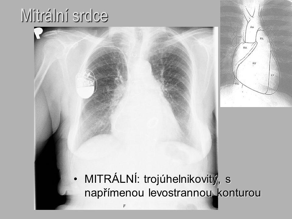 Mitrální srdce MITRÁLNÍ: trojúhelnikovitý, s napřímenou levostrannou konturouMITRÁLNÍ: trojúhelnikovitý, s napřímenou levostrannou konturou
