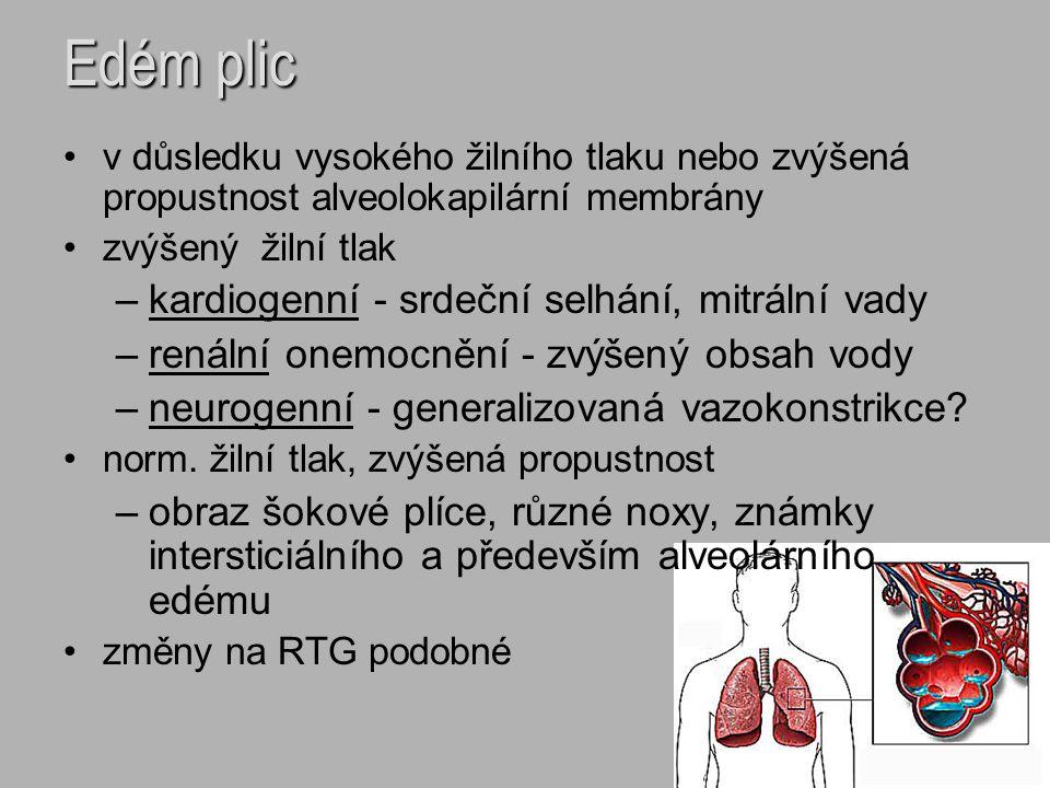 Edém plic v důsledku vysokého žilního tlaku nebo zvýšená propustnost alveolokapilární membrány zvýšený žilní tlak –kardiogenní - srdeční selhání, mitr