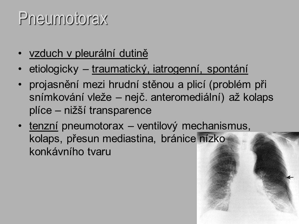 Pneumotorax vzduch v pleurální dutině etiologicky – traumatický, iatrogenní, spontání projasnění mezi hrudní stěnou a plicí (problém při snímkování vl