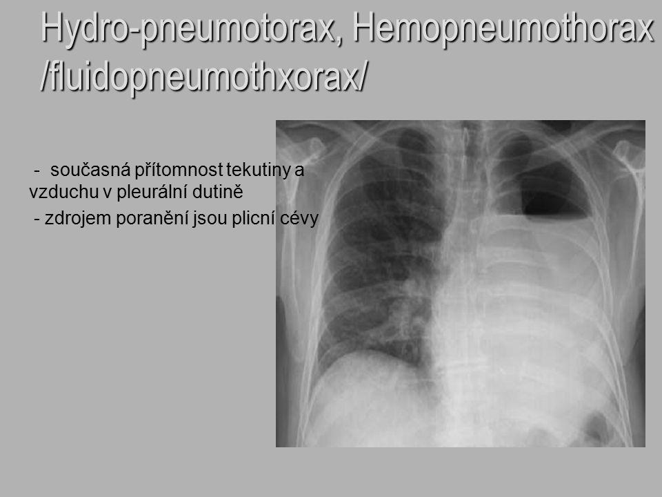 Hydro-pneumotorax, Hemopneumothorax /fluidopneumothxorax/ - současná přítomnost tekutiny a vzduchu v pleurální dutině - zdrojem poranění jsou plicní c