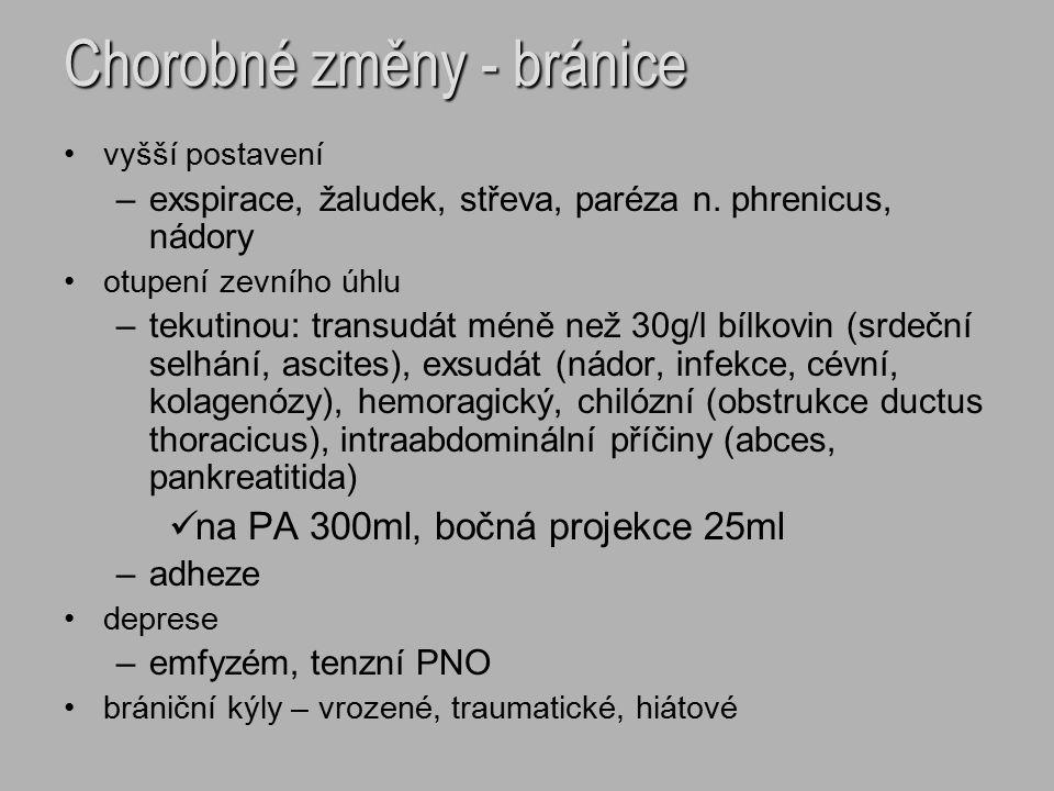 Chorobné změny - bránice vyšší postavení –exspirace, žaludek, střeva, paréza n. phrenicus, nádory otupení zevního úhlu –tekutinou: transudát méně než