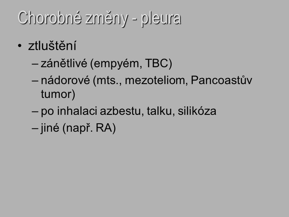Chorobné změny - pleura ztluštění –zánětlivé (empyém, TBC) –nádorové (mts., mezoteliom, Pancoastův tumor) –po inhalaci azbestu, talku, silikóza –jiné